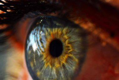 Eyelid Cancer: Diagnosis & risk factors